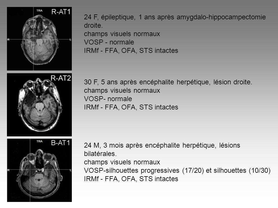 24 F, épileptique, 1 ans après amygdalo-hippocampectomie droite.