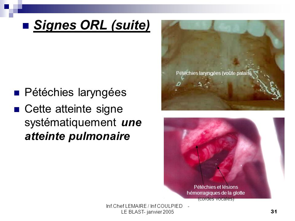 Signes ORL (suite) Pétéchies laryngées