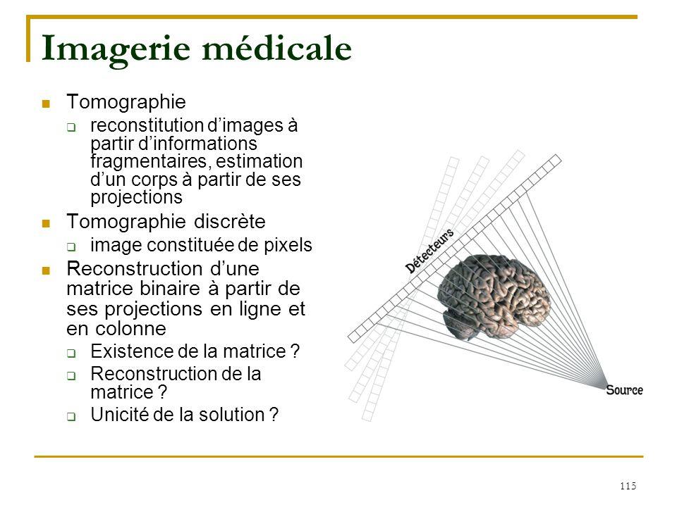 Imagerie médicale Tomographie Tomographie discrète