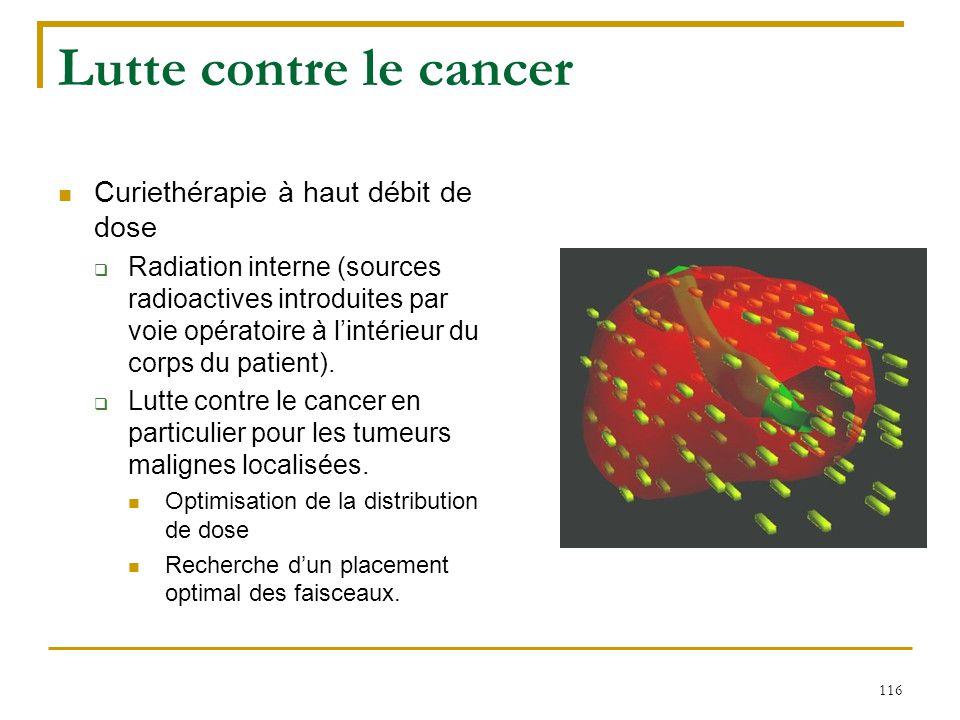 Lutte contre le cancer Curiethérapie à haut débit de dose