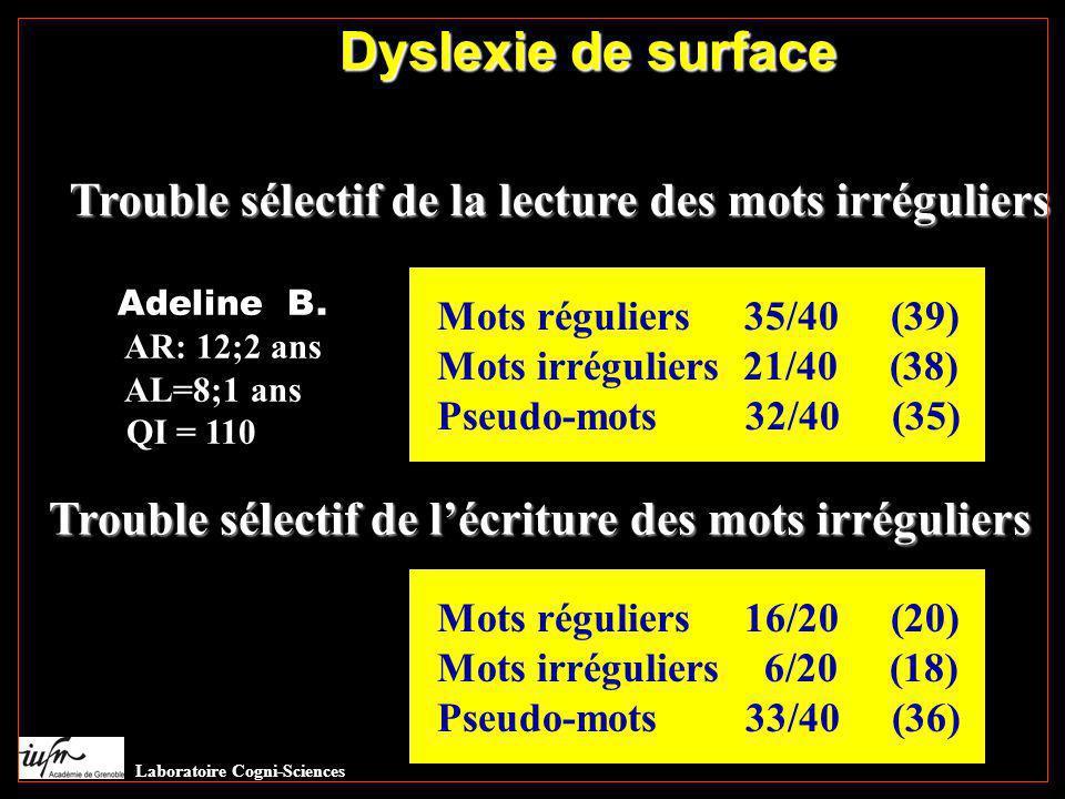 Dyslexie de surface Dys surface. Trouble sélectif de la lecture des mots irréguliers. Adeline B.