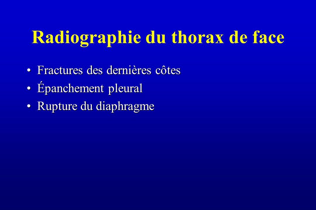 Radiographie du thorax de face