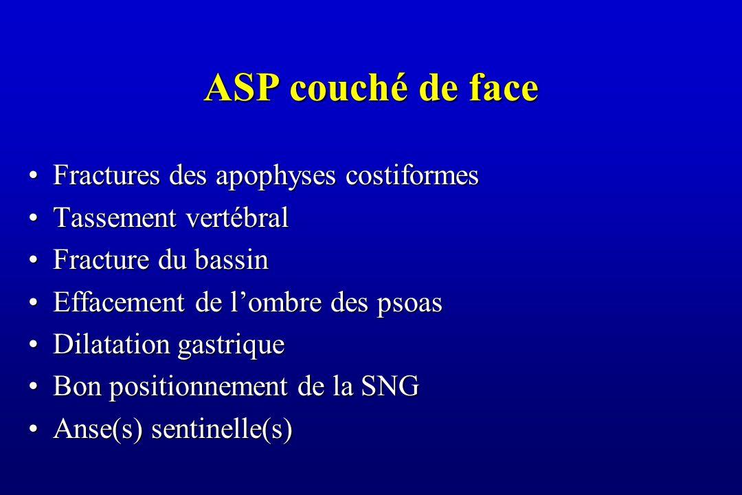 ASP couché de face Fractures des apophyses costiformes