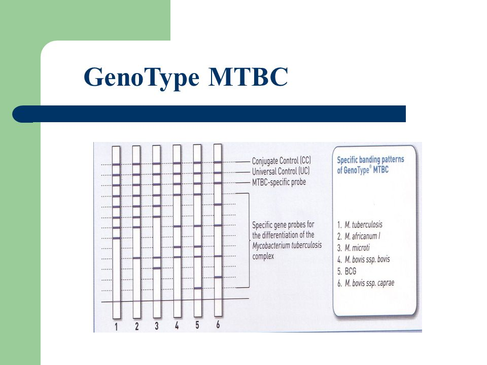 GenoType MTBC