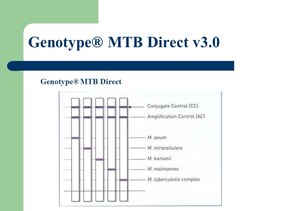Genotype® MTB Direct v3.0 Genotype® MTB Direct