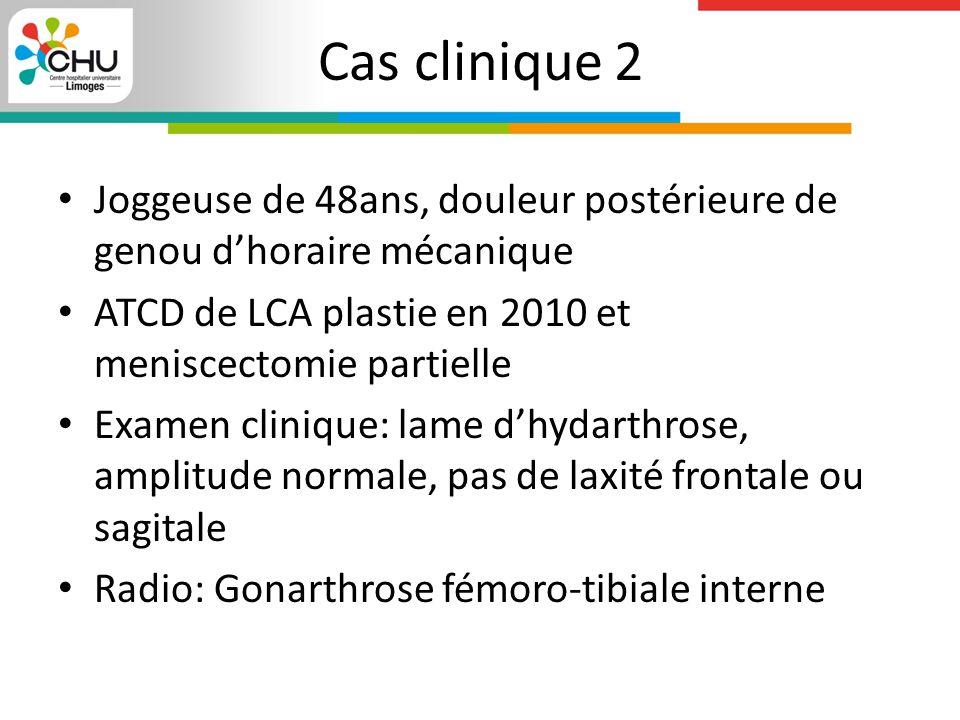 Cas clinique 2 Joggeuse de 48ans, douleur postérieure de genou d'horaire mécanique. ATCD de LCA plastie en 2010 et meniscectomie partielle.