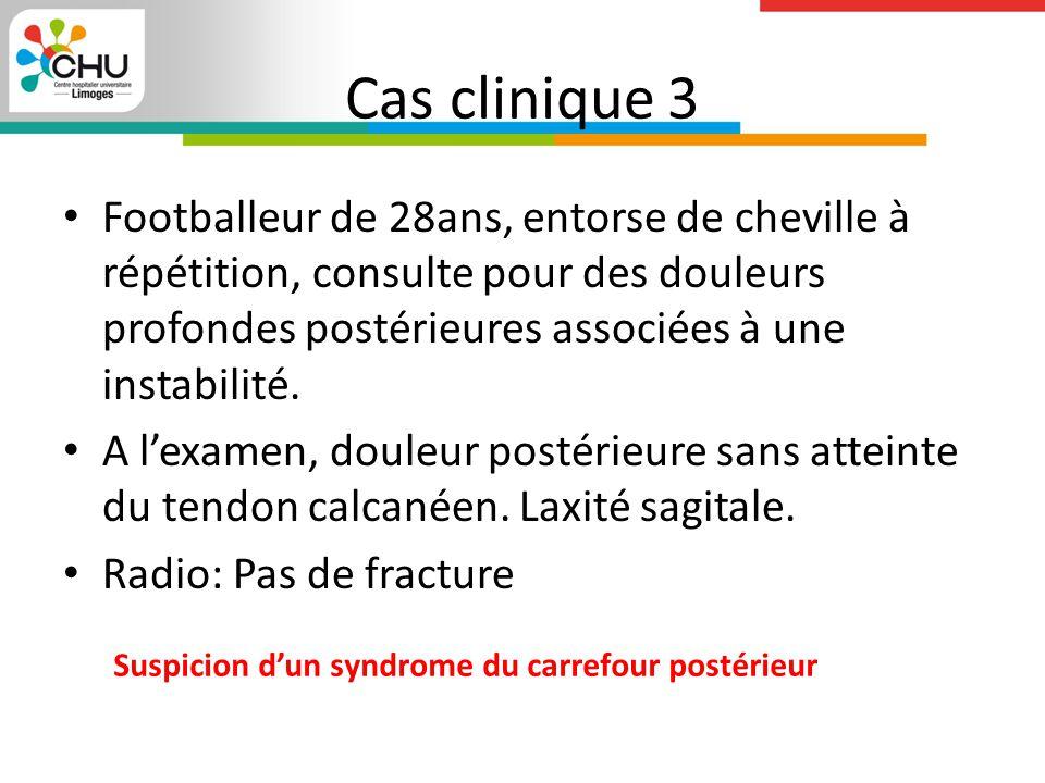 Cas clinique 3 Footballeur de 28ans, entorse de cheville à répétition, consulte pour des douleurs profondes postérieures associées à une instabilité.