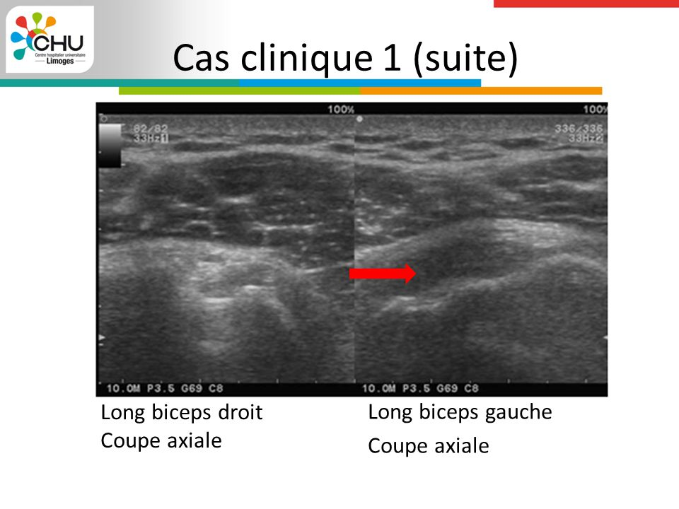 Cas clinique 1 (suite) Long biceps gauche