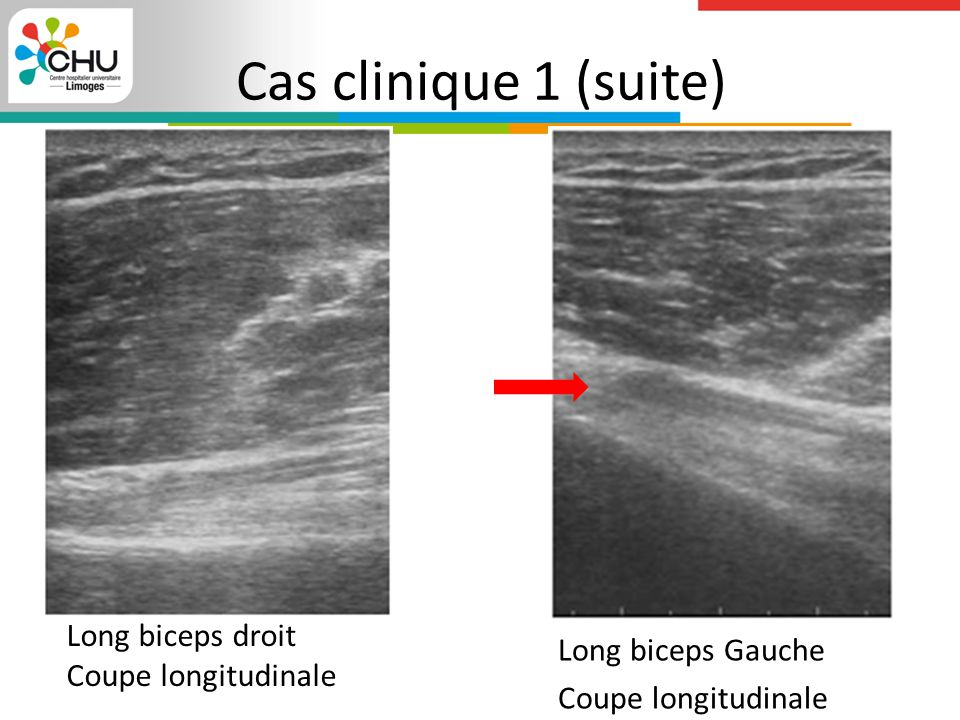 Cas clinique 1 (suite) Long biceps droit