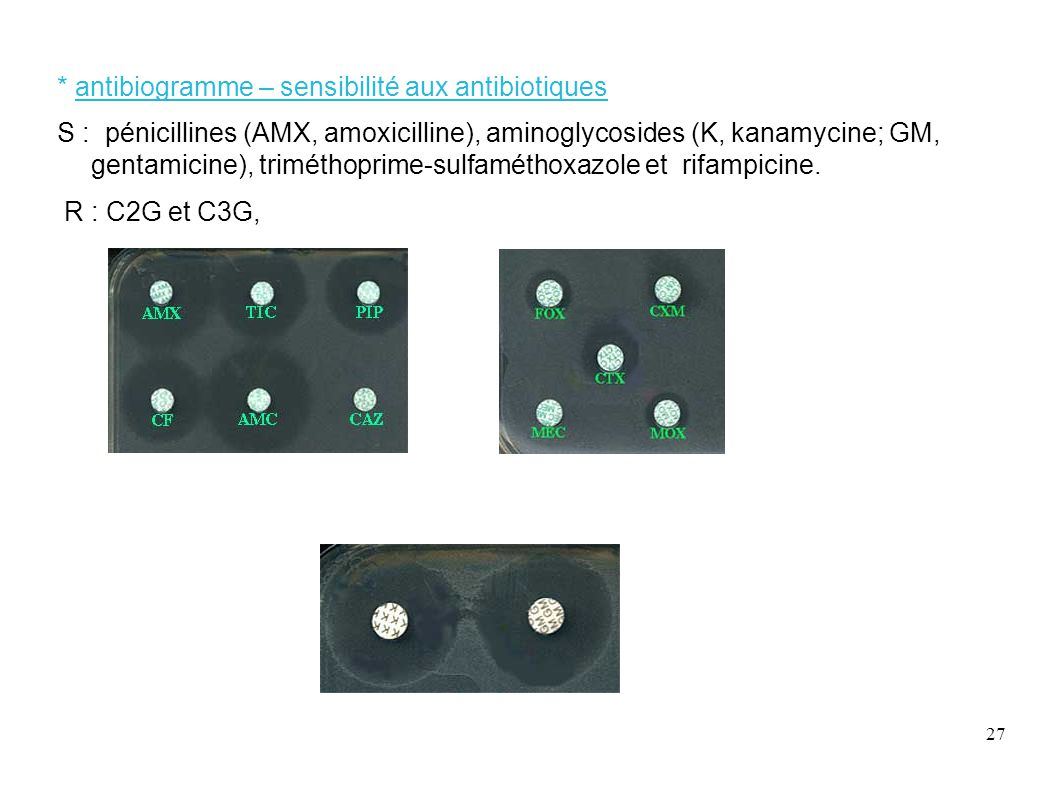 * antibiogramme – sensibilité aux antibiotiques