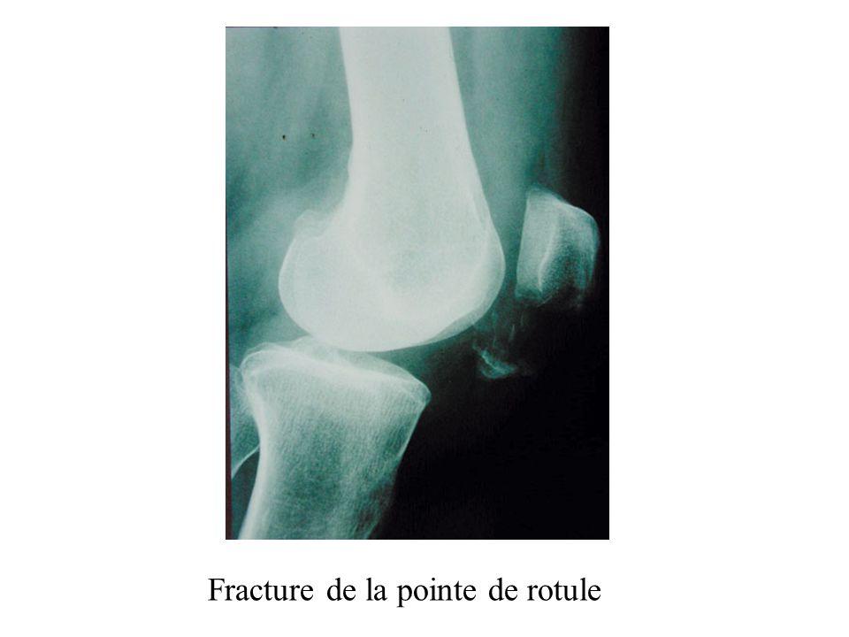 Fracture de la pointe de rotule