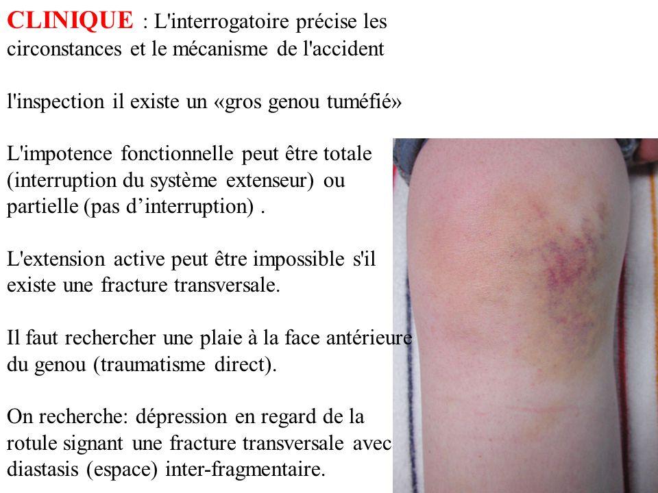 CLINIQUE : L interrogatoire précise les circonstances et le mécanisme de l accident