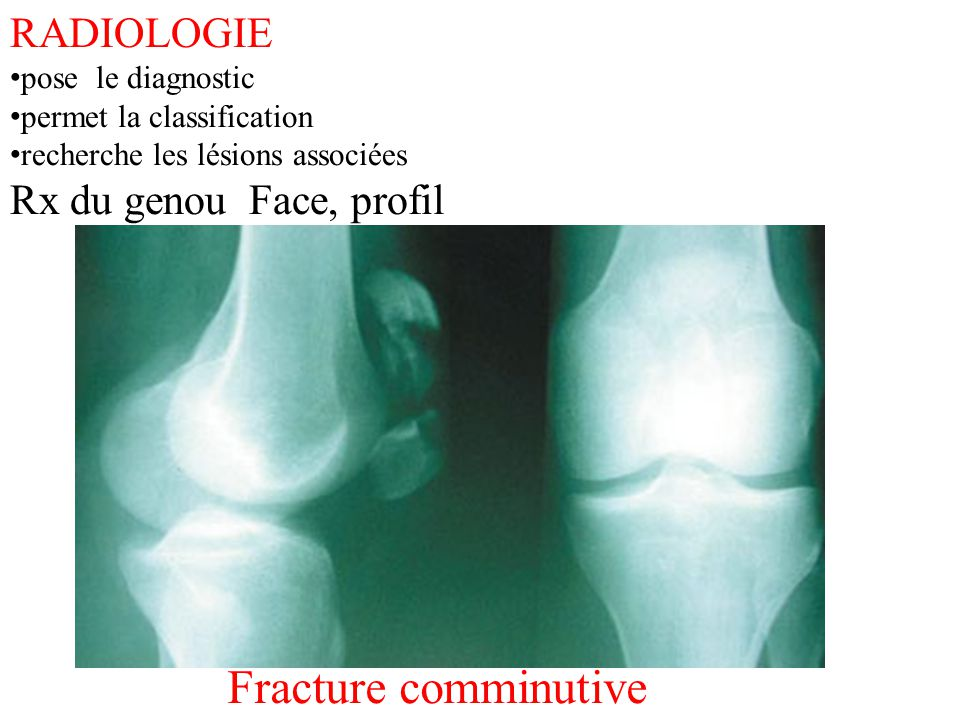 Fracture comminutive RADIOLOGIE Rx du genou Face, profil