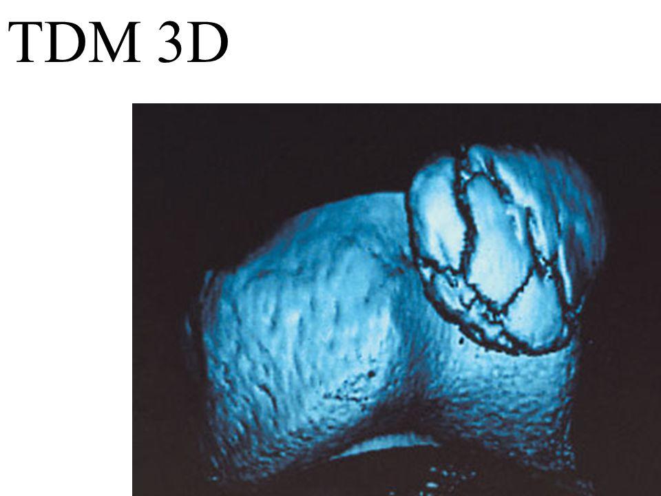 TDM 3D