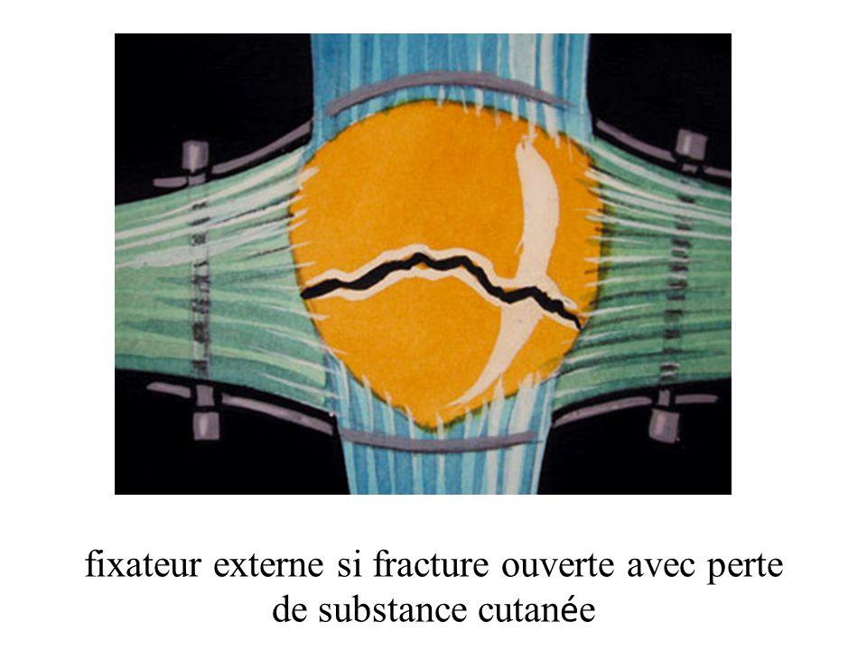 fixateur externe si fracture ouverte avec perte de substance cutanée