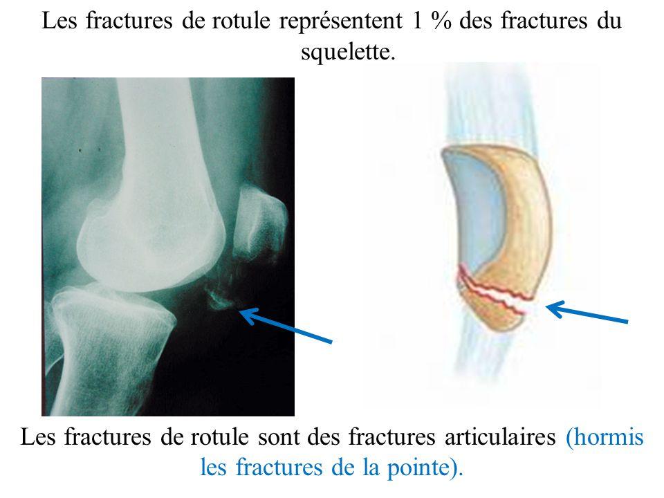 Les fractures de rotule représentent 1 % des fractures du squelette.