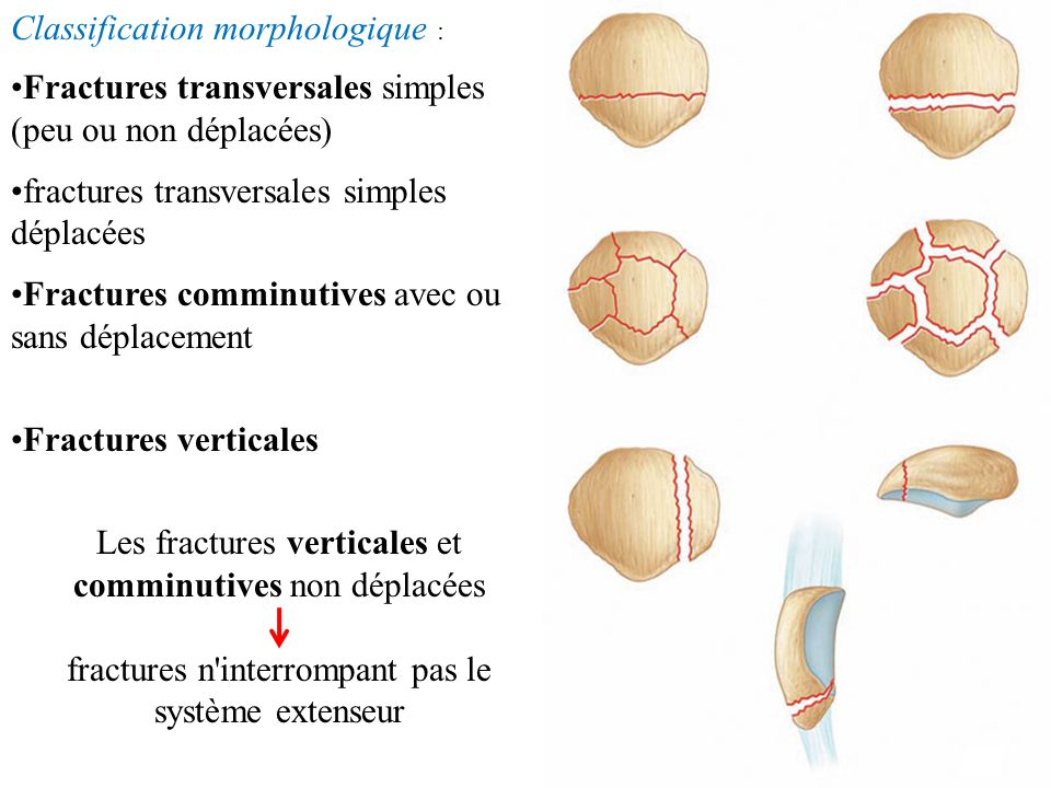 Classification morphologique :