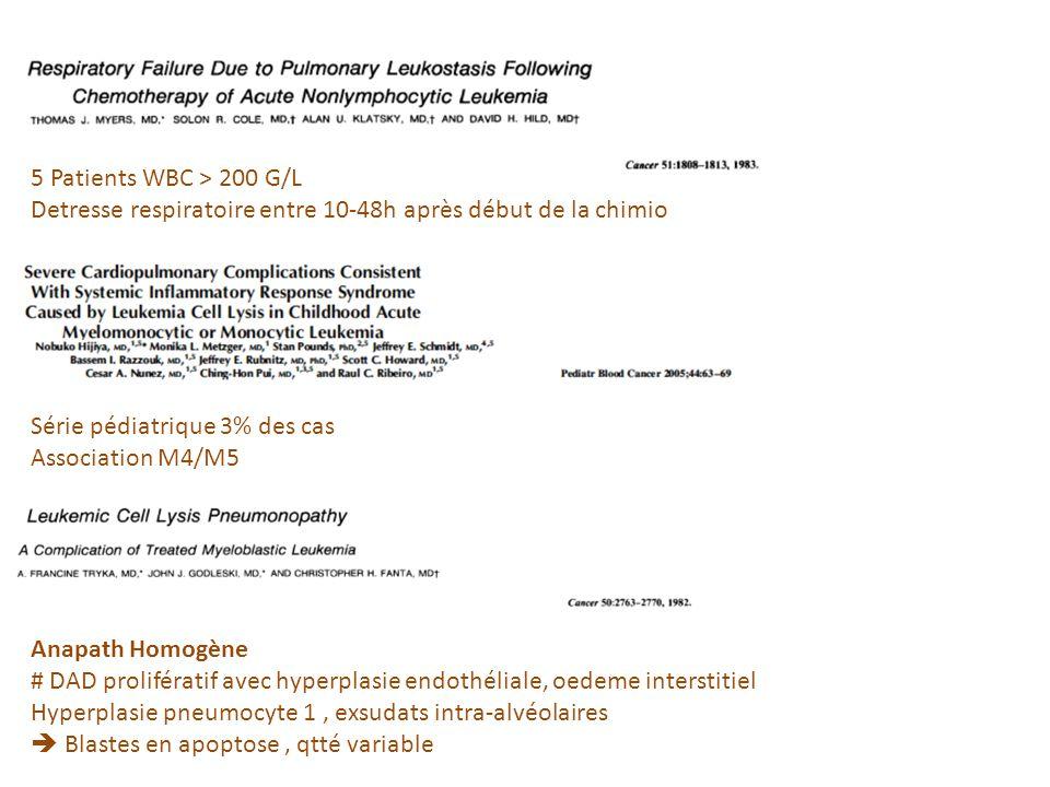 5 Patients WBC > 200 G/L Detresse respiratoire entre 10-48h après début de la chimio. Série pédiatrique 3% des cas.