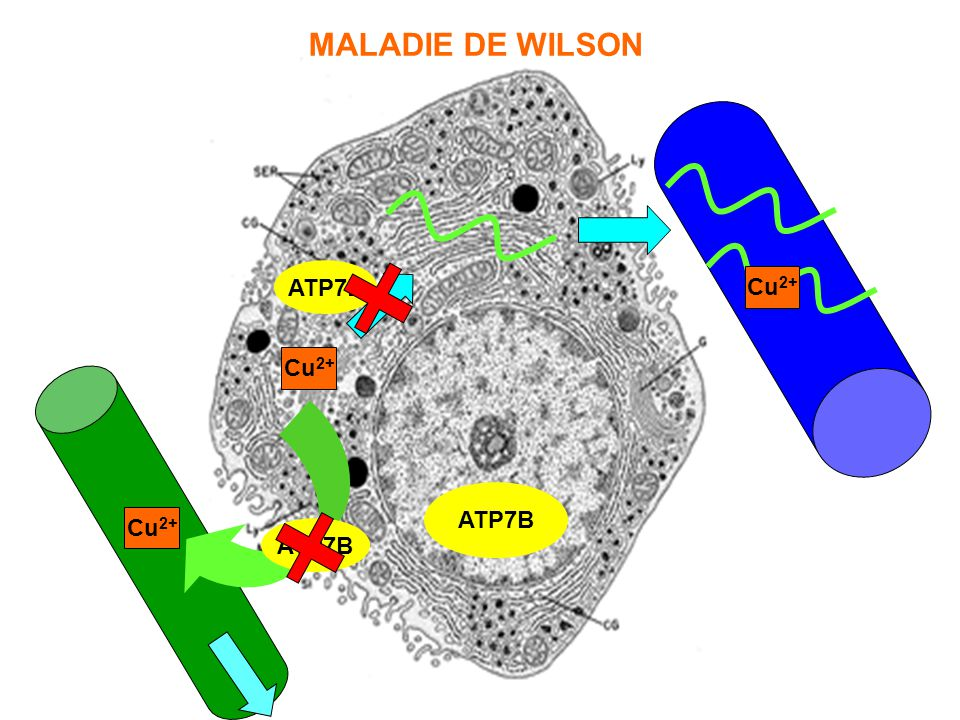 MALADIE DE WILSON Cu2+ ATP7B Cu2+ ATP7B Cu2+ ATP7B