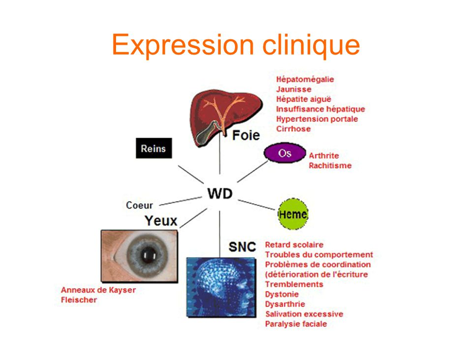Expression clinique