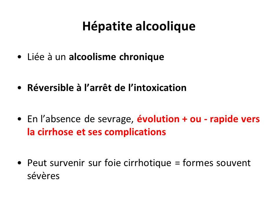 Hépatite alcoolique Liée à un alcoolisme chronique
