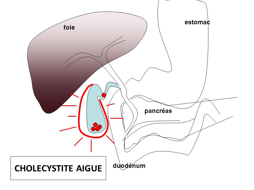 estomac foie pancréas CHOLECYSTITE AIGUE duodénum