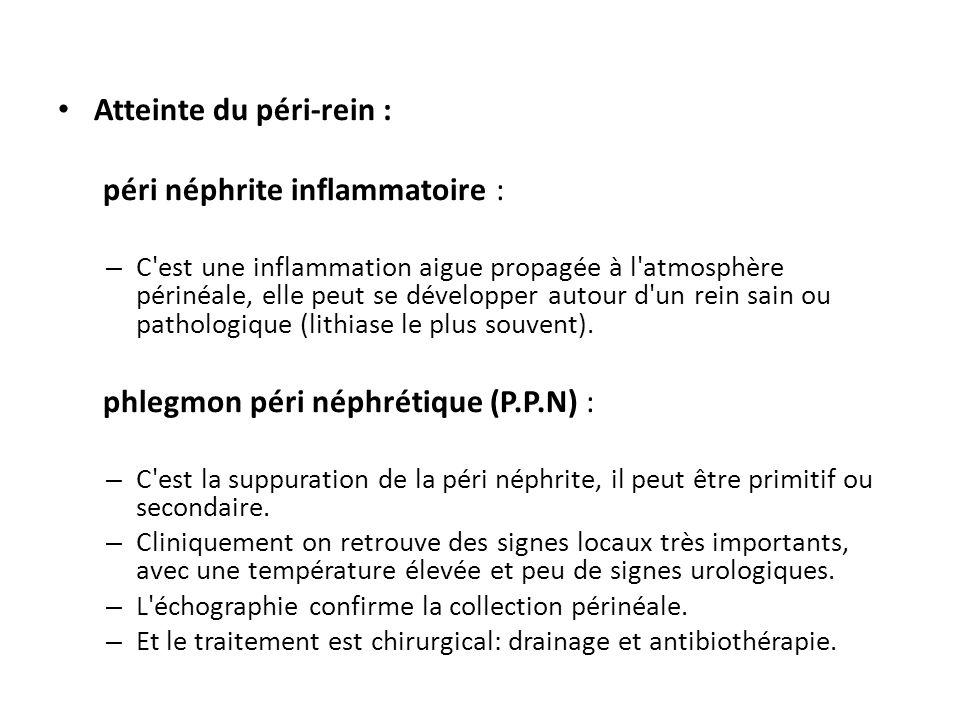 Atteinte du péri-rein : péri néphrite inflammatoire :
