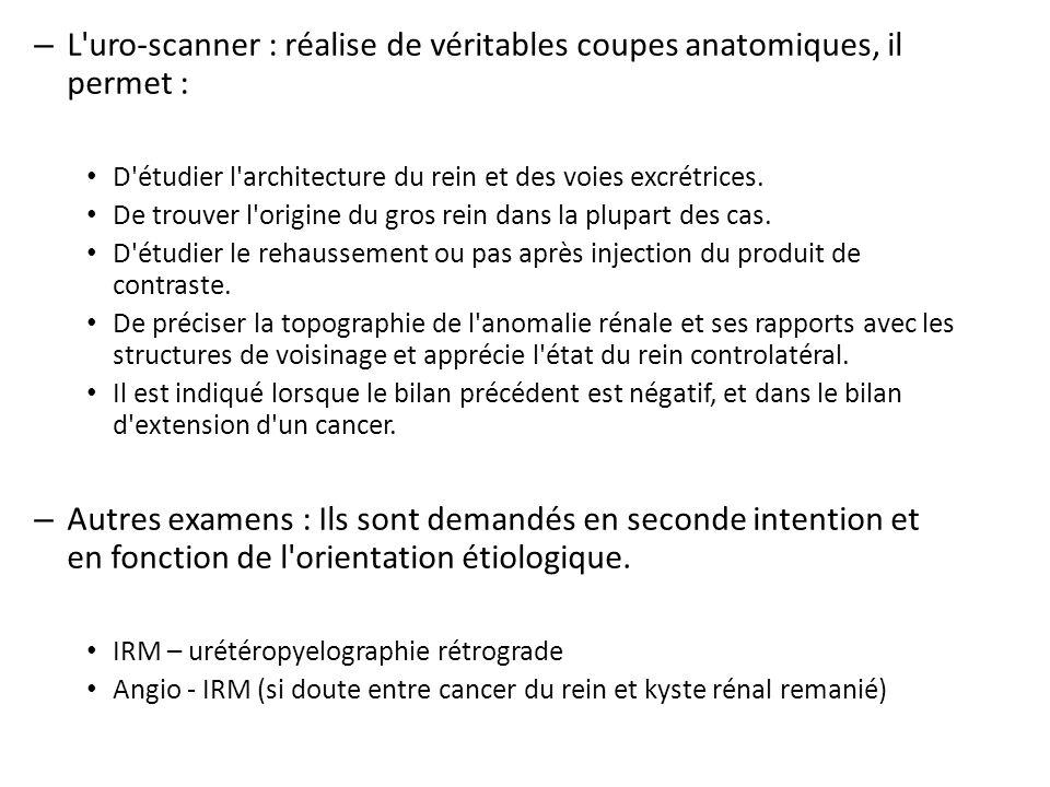 L uro-scanner : réalise de véritables coupes anatomiques, il permet :