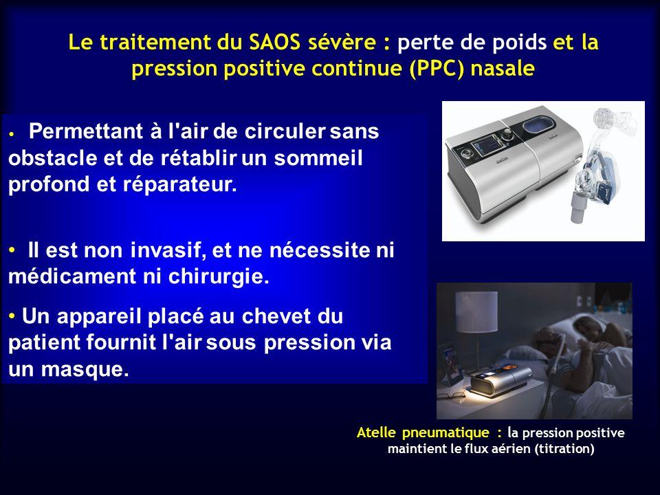 syndrome d apn es du sommeil et le diab te ppt video. Black Bedroom Furniture Sets. Home Design Ideas