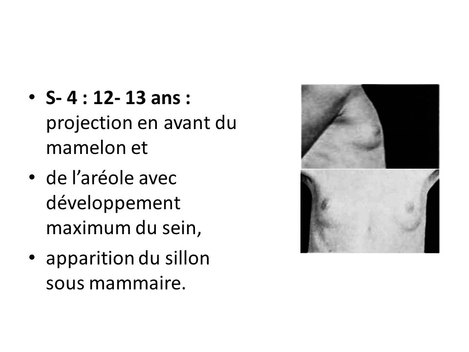 S- 4 : ans : projection en avant du mamelon et