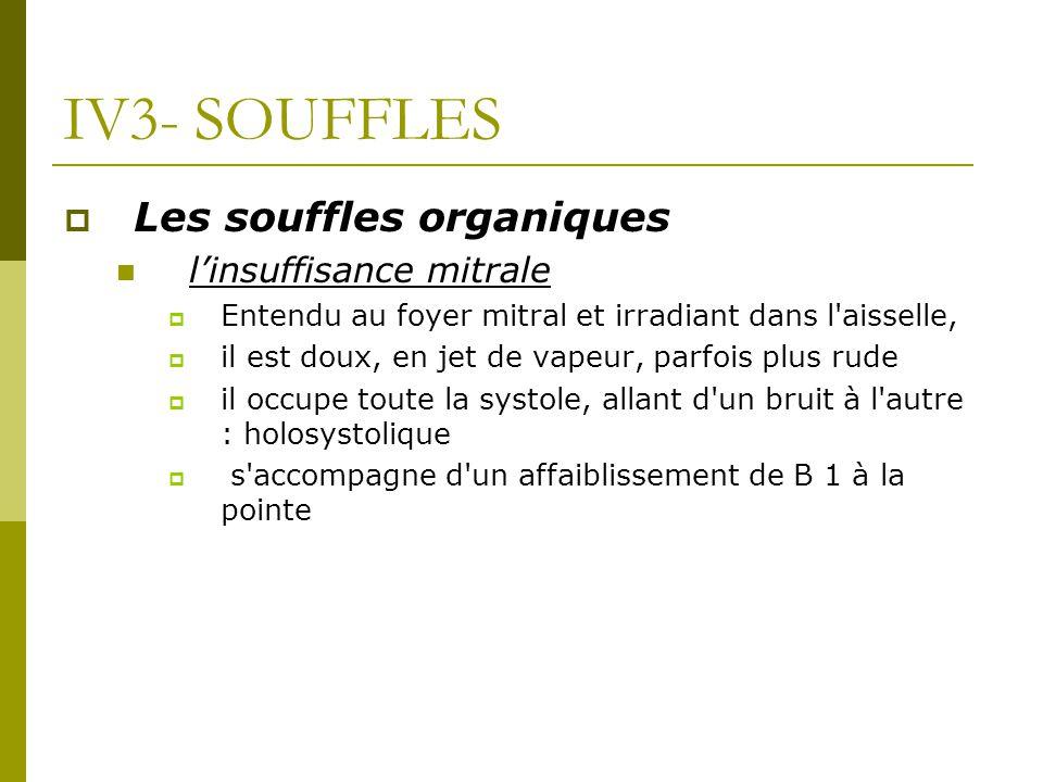 IV3- SOUFFLES Les souffles organiques l'insuffisance mitrale