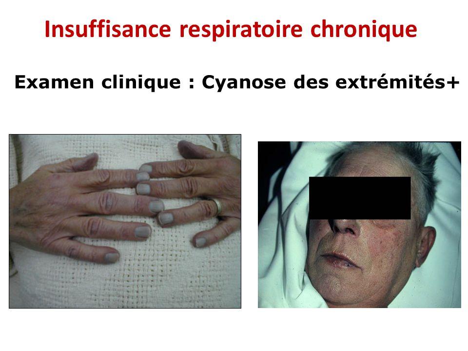 oxyg u00e9noth u00e9rapie  u00e0 domicile indications et modalit u00e9s