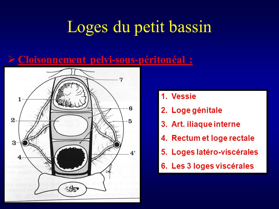 Loges du petit bassin Cloisonnement pelvi-sous-péritonéal : Vessie