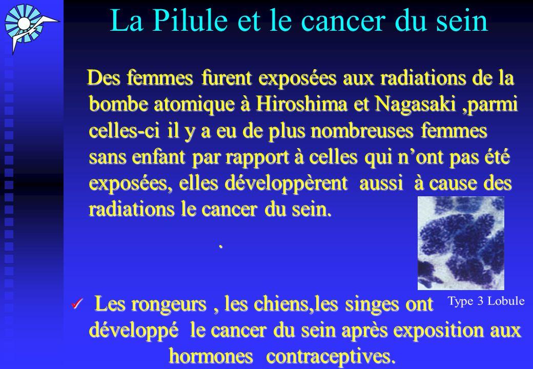 Causes du cancer du sein Le-Cancercom