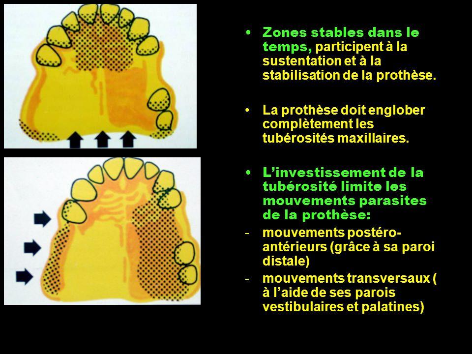 Zones stables dans le temps, participent à la sustentation et à la stabilisation de la prothèse.