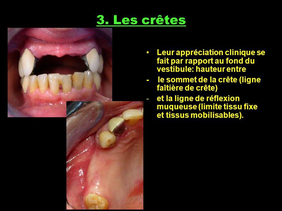 3. Les crêtes Leur appréciation clinique se fait par rapport au fond du vestibule: hauteur entre.