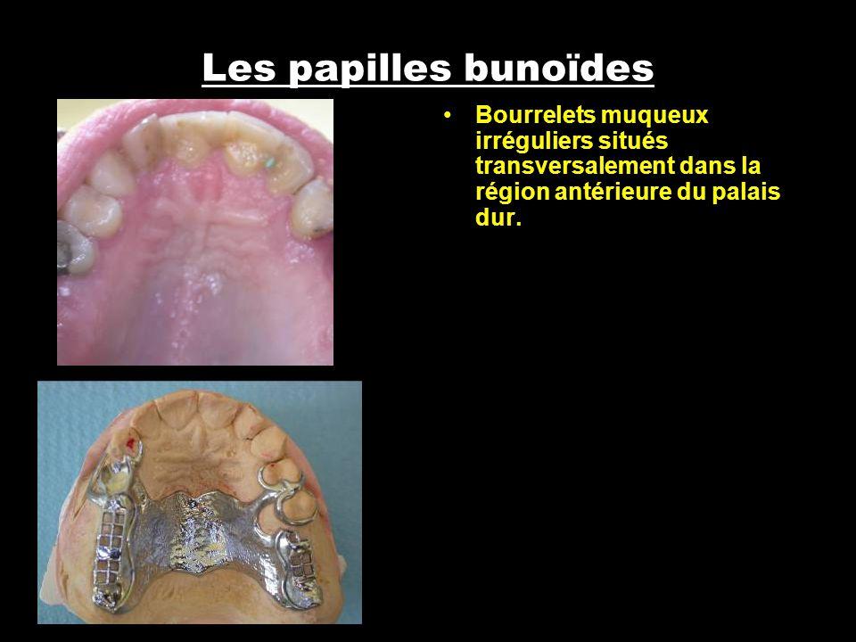 Les papilles bunoïdes Bourrelets muqueux irréguliers situés transversalement dans la région antérieure du palais dur.