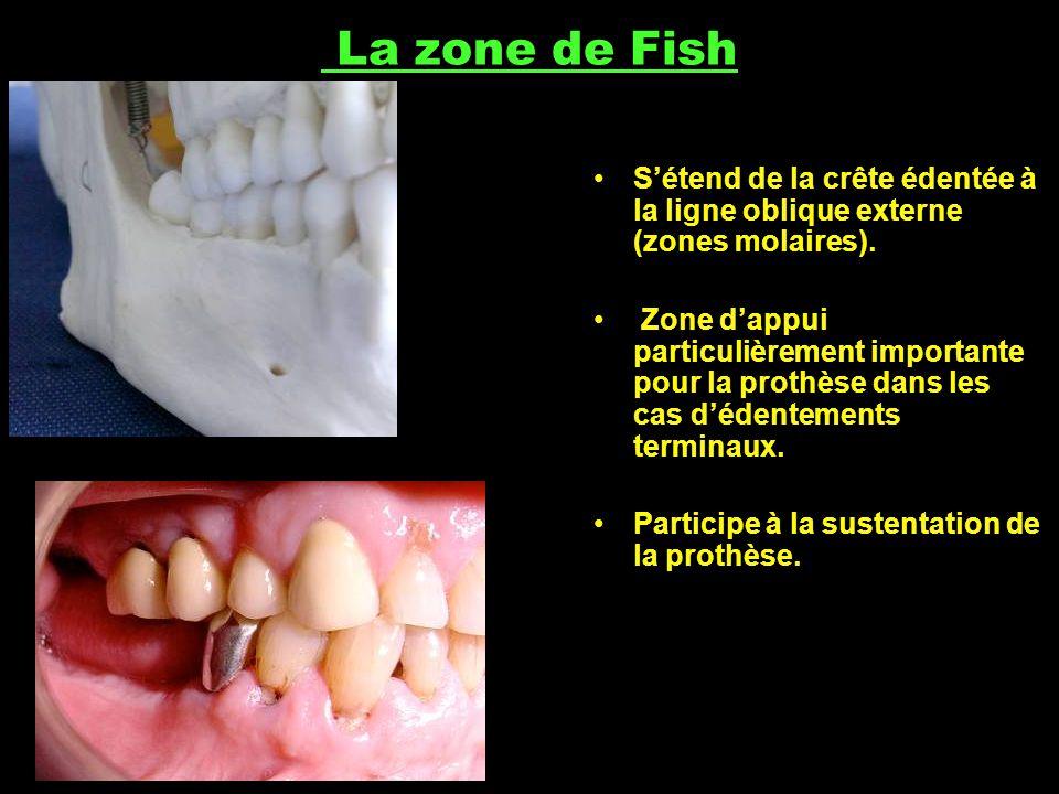 La zone de Fish S'étend de la crête édentée à la ligne oblique externe (zones molaires).