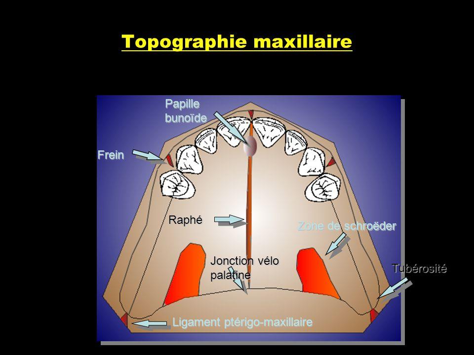 Topographie maxillaire