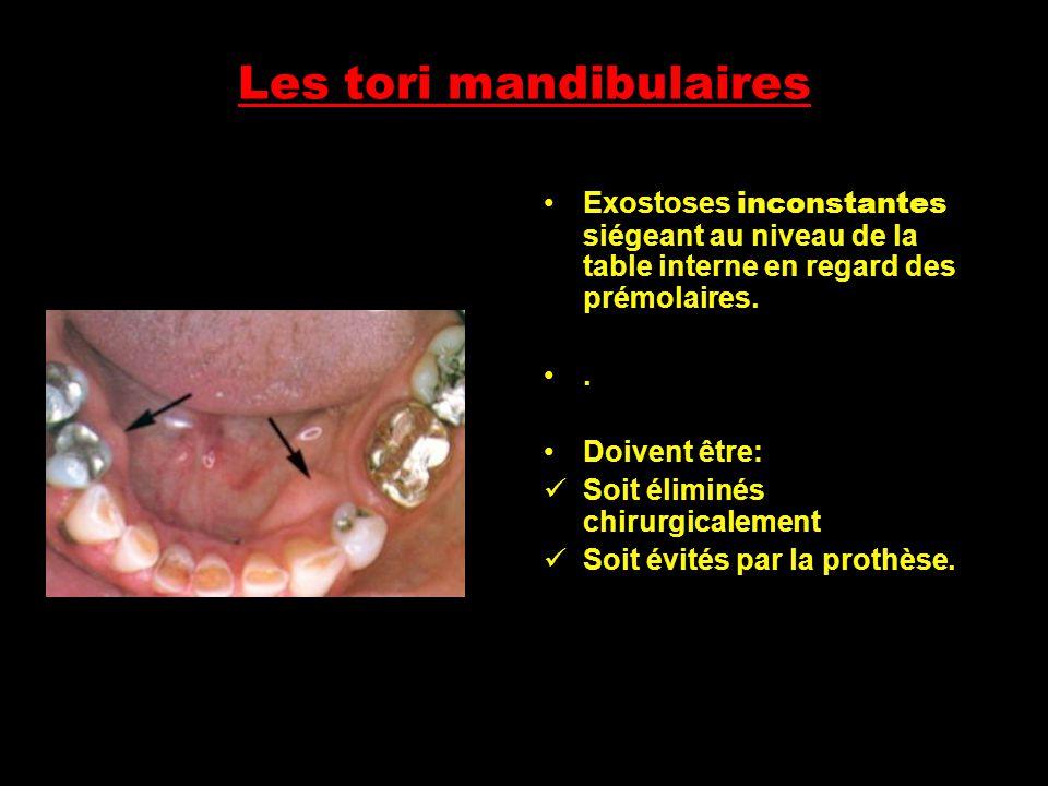 Les tori mandibulaires