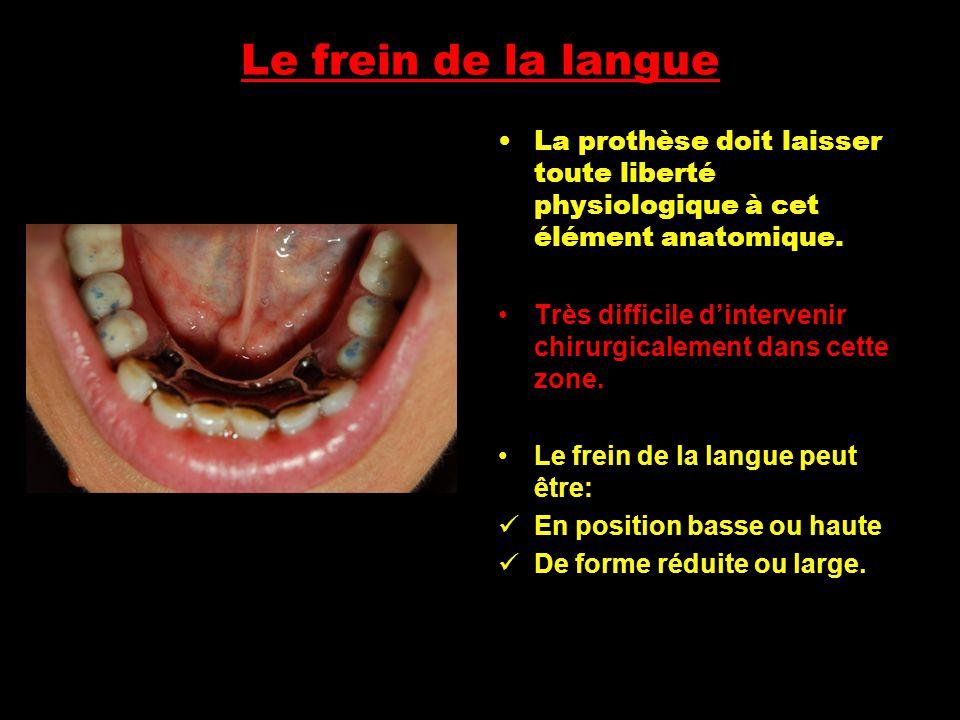Le frein de la langue La prothèse doit laisser toute liberté physiologique à cet élément anatomique.