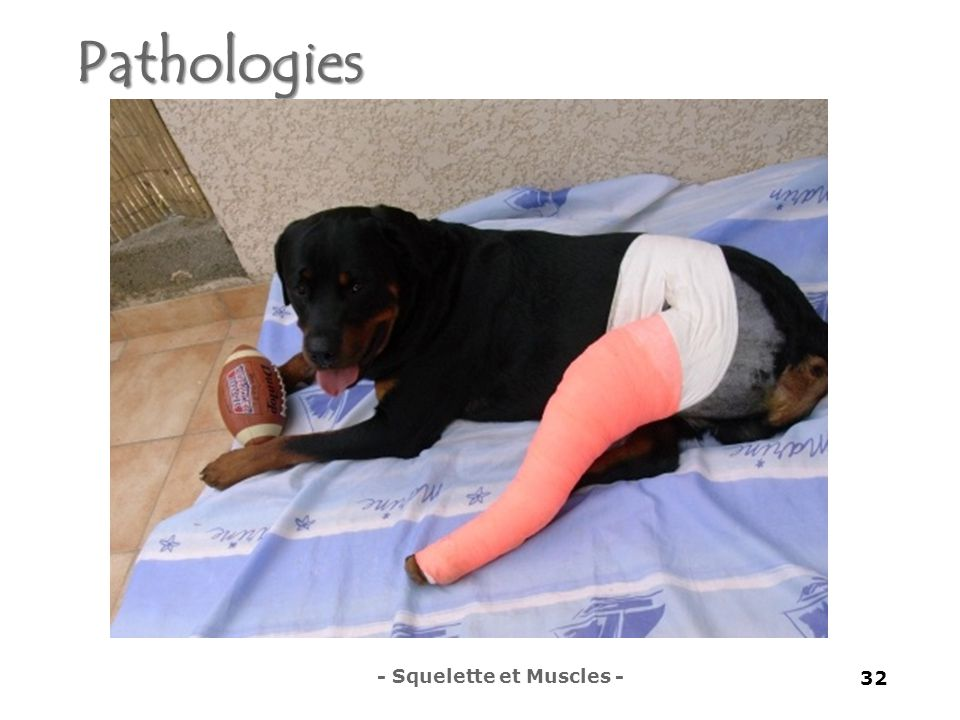 Pathologies - Squelette et Muscles -