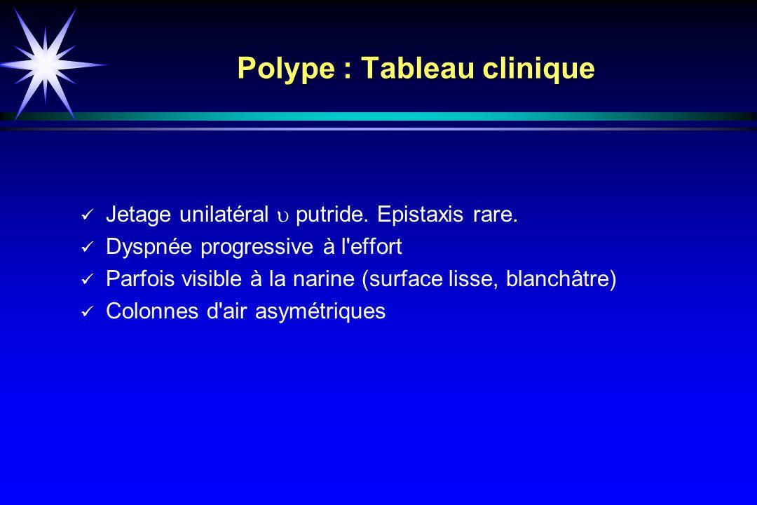 Polype : Tableau clinique