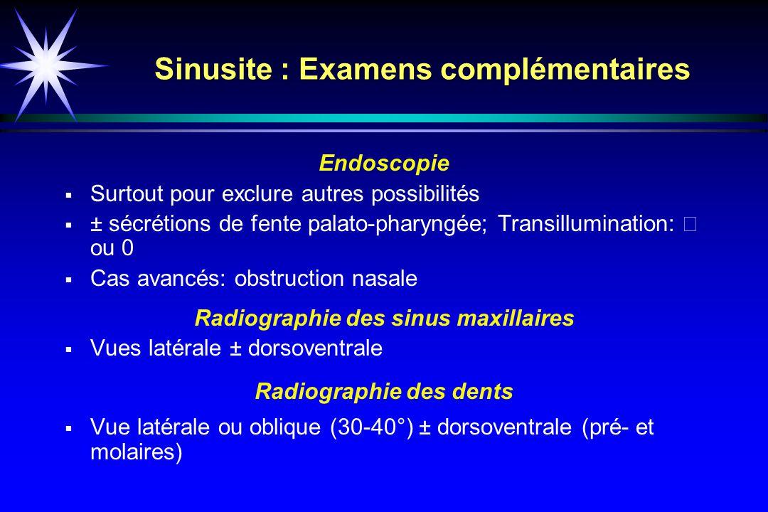 Sinusite : Examens complémentaires