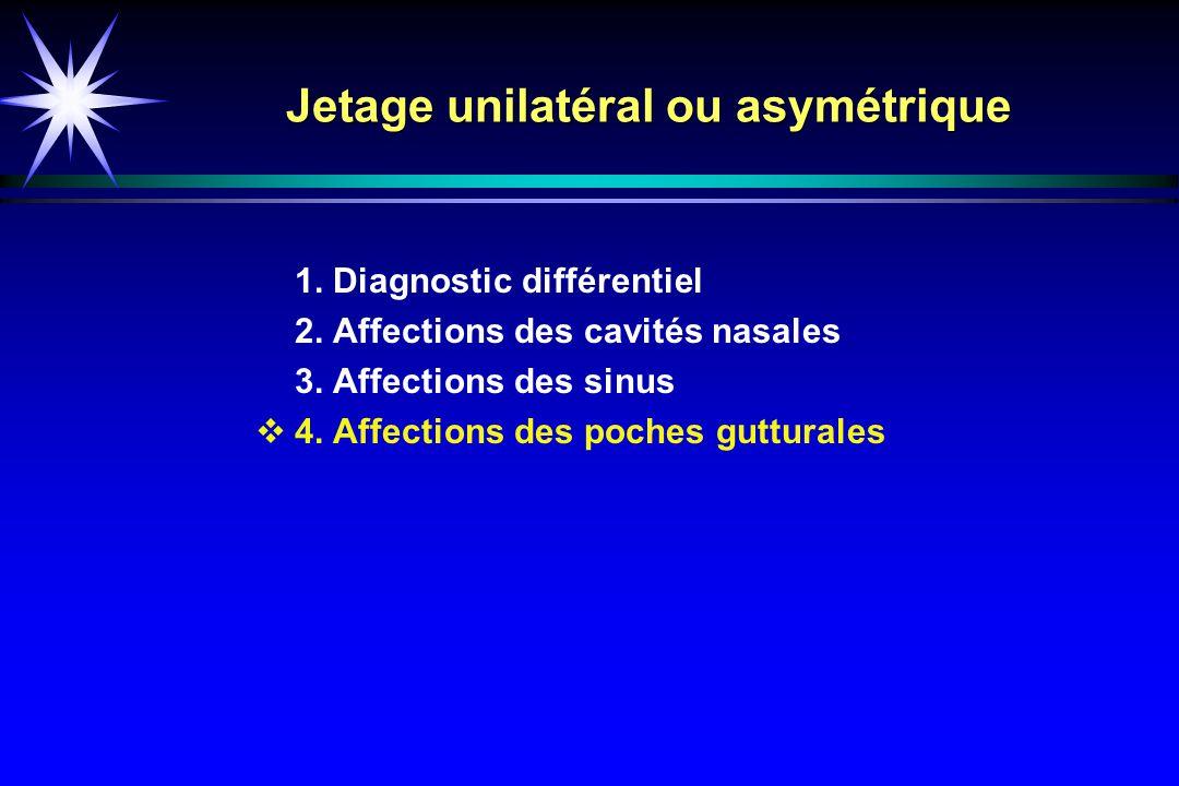 Jetage unilatéral ou asymétrique