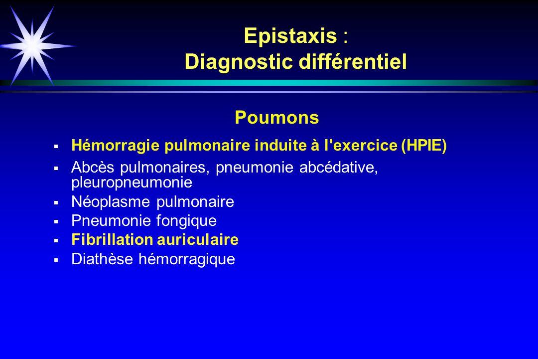 Epistaxis : Diagnostic différentiel