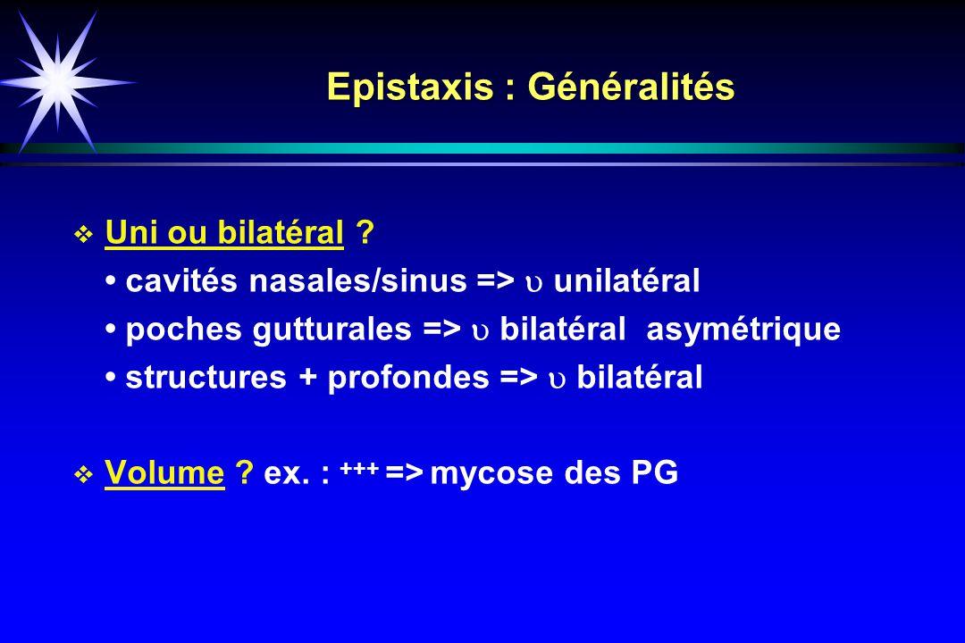 Epistaxis : Généralités