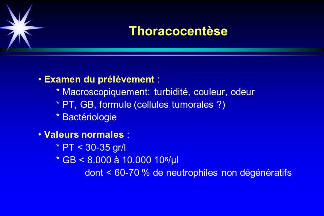 Thoracocentèse • Examen du prélèvement :