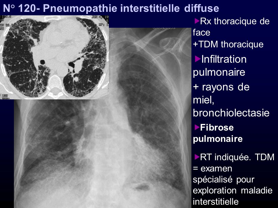 N° 120- Pneumopathie interstitielle diffuse