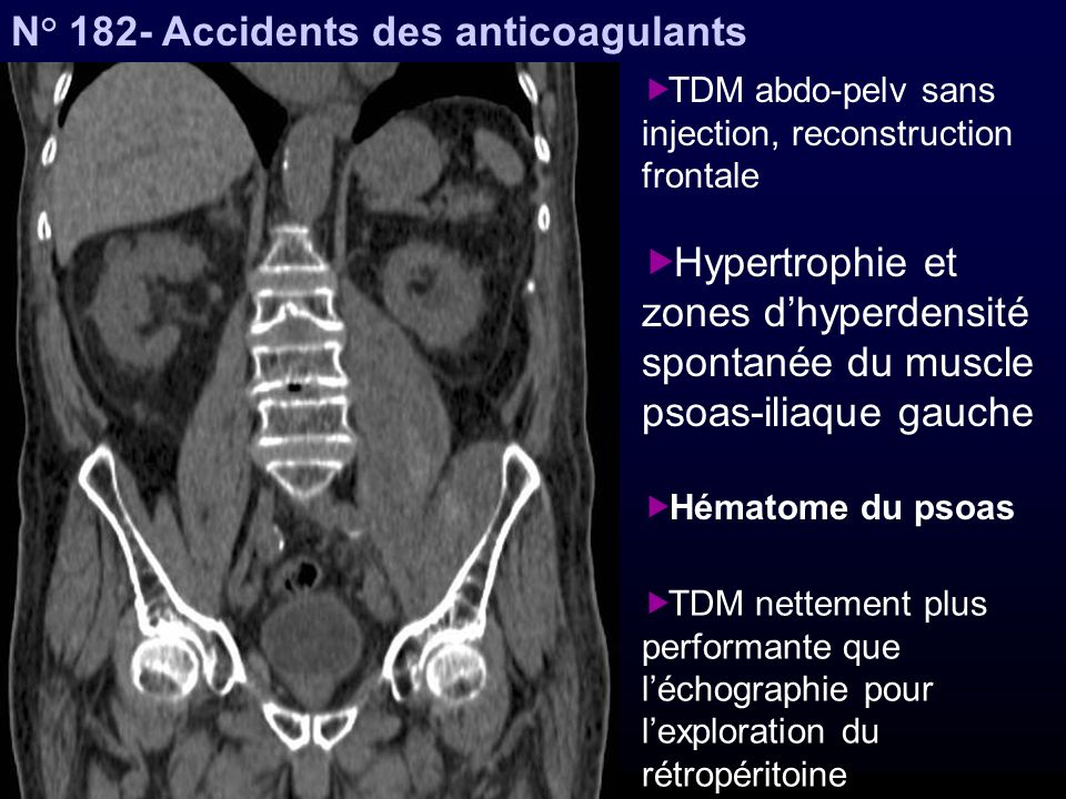 N° 182- Accidents des anticoagulants